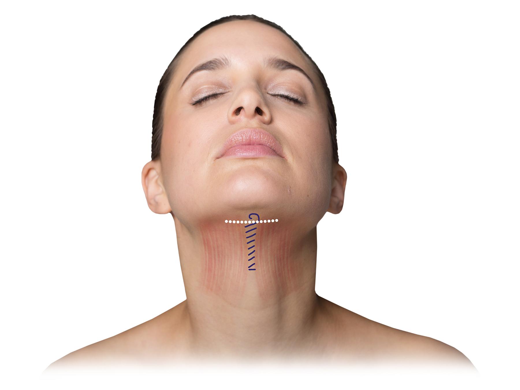 Facelift: Eingezeichnete Strukturen zeigen die Möglichkeit, das Gesicht zu erfrischen.