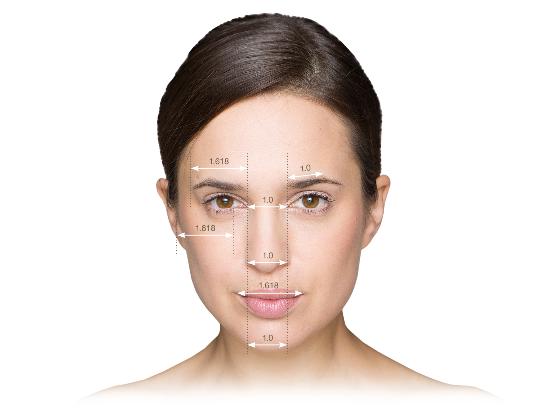 Facelift:              Die Muskulatur im Wangenbereich wird senkrecht gestrafft.