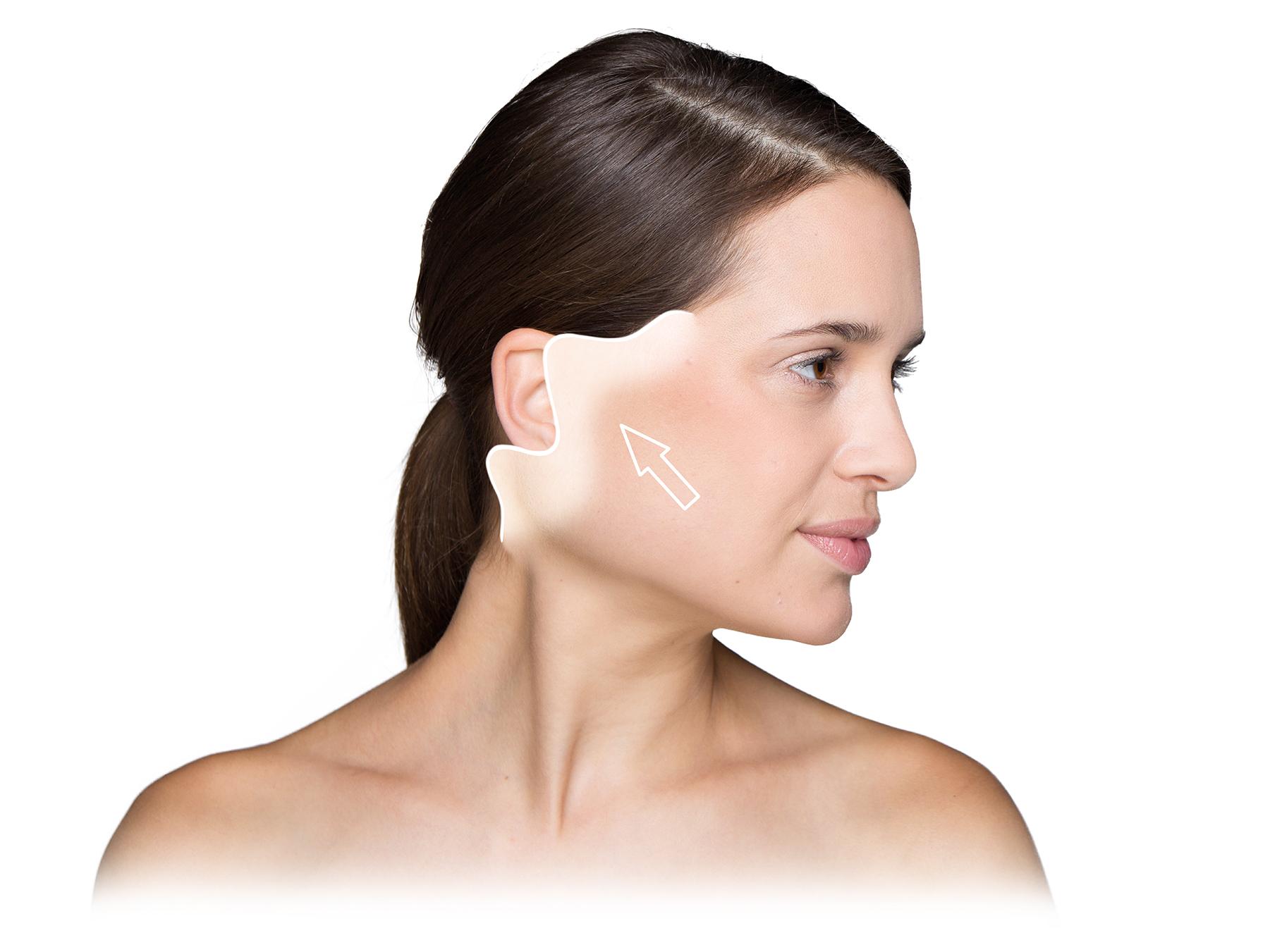 Facelift:              Der Hautüberschuss wird spannungsfrei ausgebreitet.