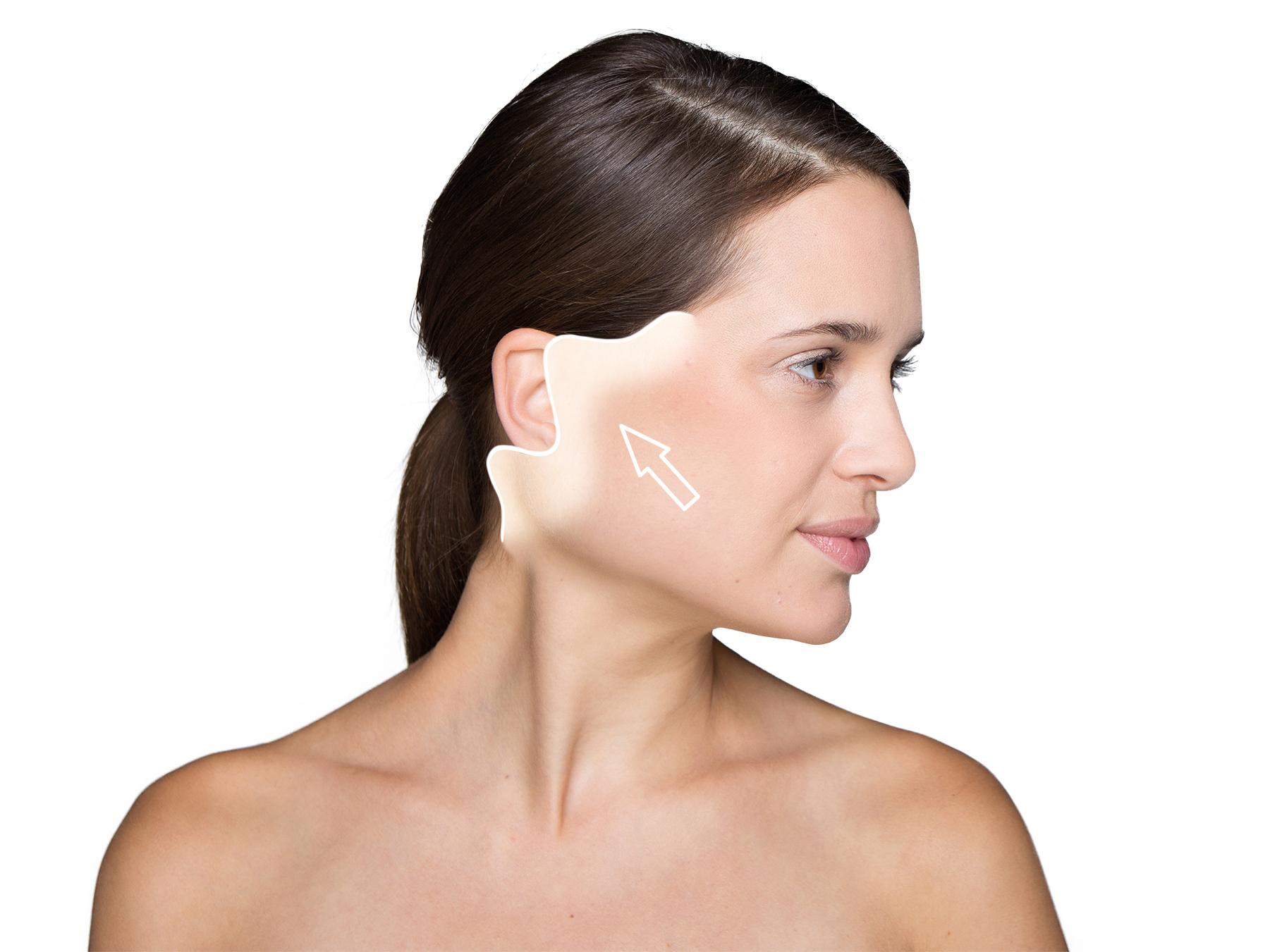Facelift:              Die Muskulatur im Halsbereich wird parallel zum Unterkiefer gestrafft.